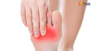 4 วิธีป้องกันภาวะแทรกซ้อนเรื้อรัง อาการชามือและเท้า ในผู้ป่วยเบาหวาน