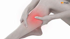 โรคหลอดเลือดแดงส่วนปลายอุดตันที่ขา เป็นแล้วอย่าปล่อยไว้ รุนแรงจนอาจต้องตัดขา!!