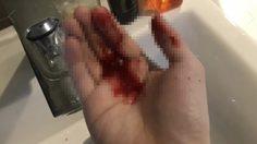 หนุ่มตื่นมาคอแห้ง แสบจมูก จามเป็นเลือด คาดอาจเป็นเพราะได้รับฝุ่นละออง