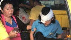 อันตราย! เด็กหญิงวัย 11 วิ่งเล่นกับเพื่อน ก่อนพลาดท่าถูกด้ามธงแทงตา