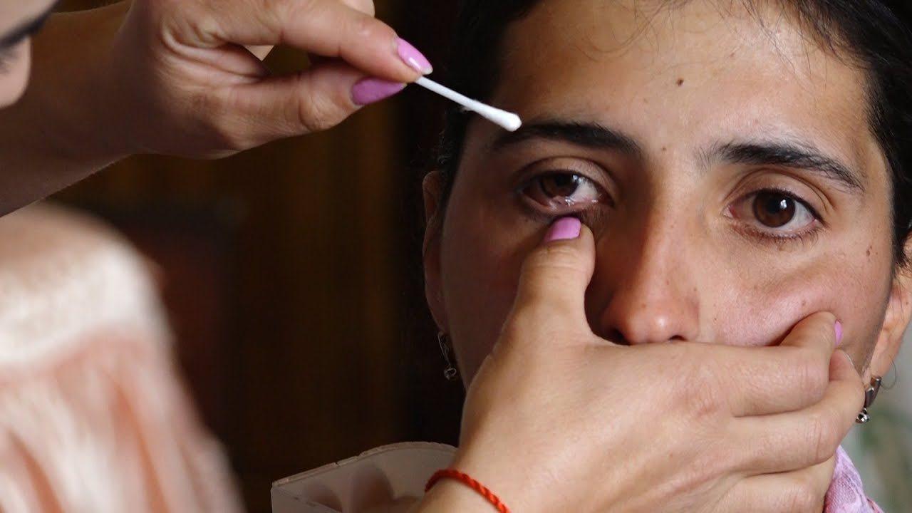 สาวอาร์เมเนียป่วยแปลก น้ำตาไหลเป็นคริสตัล แพทย์มึนยังไม่ทราบเหตุ