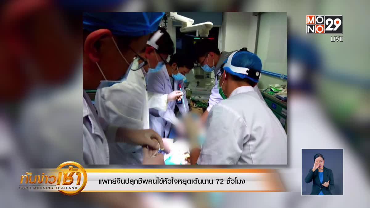 แพทย์จีนปลุกชีพคนไข้หัวใจหยุดเต้นนาน 72 ชั่วโมง
