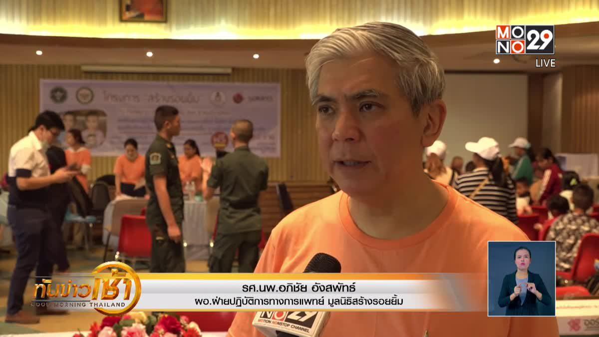 แพทย์ชี้ สถานการณ์โรคปากแหว่งเพดานโหว่ในไทยดีขึ้น