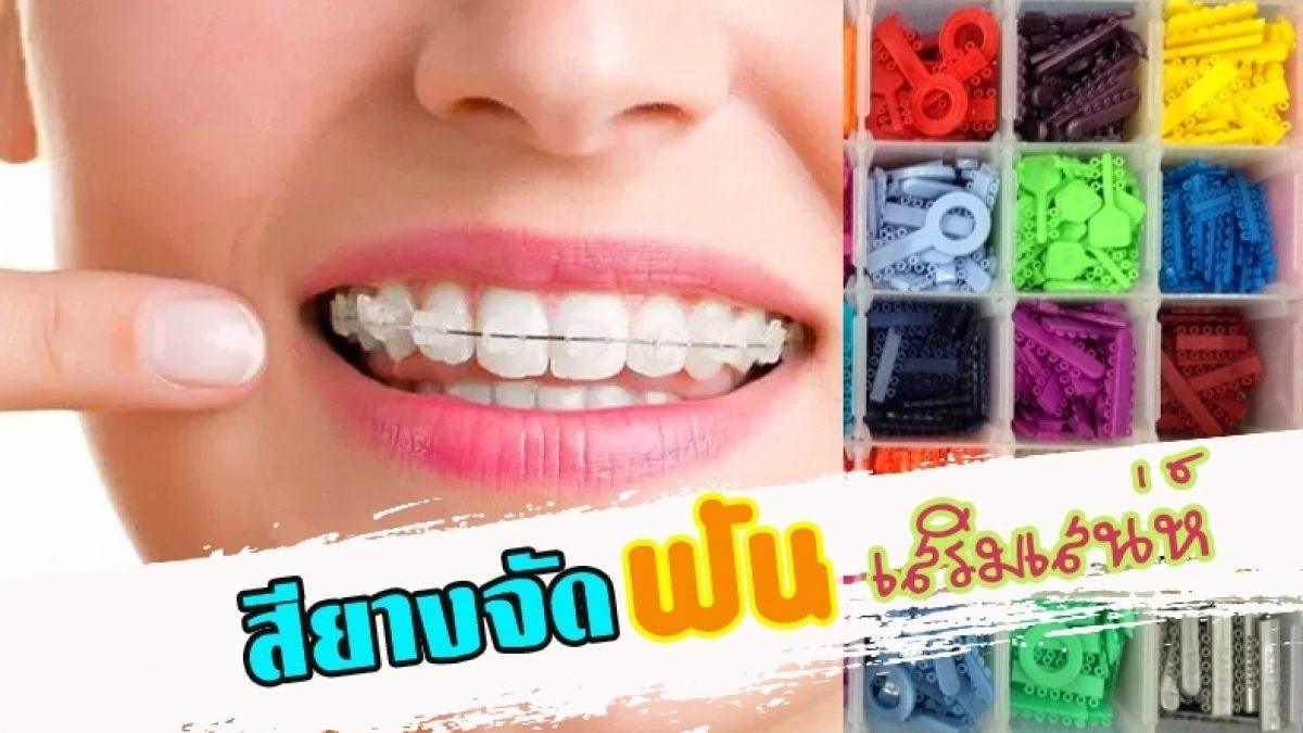 สียางจัดฟันเสริมเสน่ห์ คำพูดน่าเชื่อถือขึ้นอีก 90 % ต้องเลือกให้ถูกตามวันเกิด
