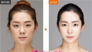 เผยโฉม ผู้เชี่ยวชาญด้านการศัลยกรรมความงาม จากประเทศเกาหลี