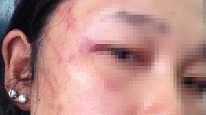 สาวแจ้งจับแฟนเก่า หลังโดนตบตี ลากกับพื้นถนน ทั้งที่ท้องได้ 6 เดือน