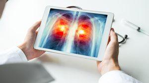 5 ปัจจัยเสี่ยงโรคมะเร็งปอด ควรหลีกเลี่ยงซะก่อนสายเกินไป!!
