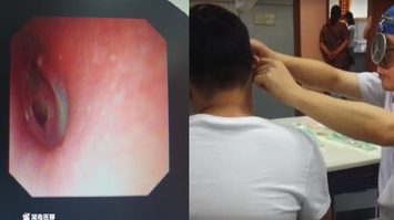 สาวจีนชอบจูบที่ หู ของแฟนหนุ่มอย่างดูดดื่ม ก่อนจบที่ฝ่ายชายปวดหูจนต้องส่งเข้าโรงพยาบาล