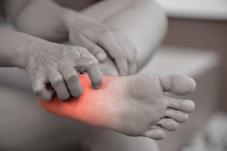 โรคน้ำกัดเท้า