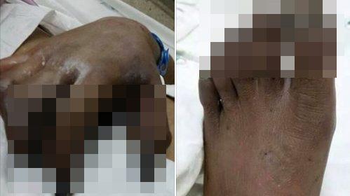 แพทย์ระวัง ยาเออร์กอต อันตราย เสี่ยงมือ-เท้า ถูกตัดทิ้ง