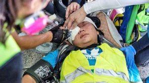 เผยคลิปนาทีตำรวจฮ่องกงยิงนักข่าวหญิงชาวอินโดนีเซียจนตาบอด