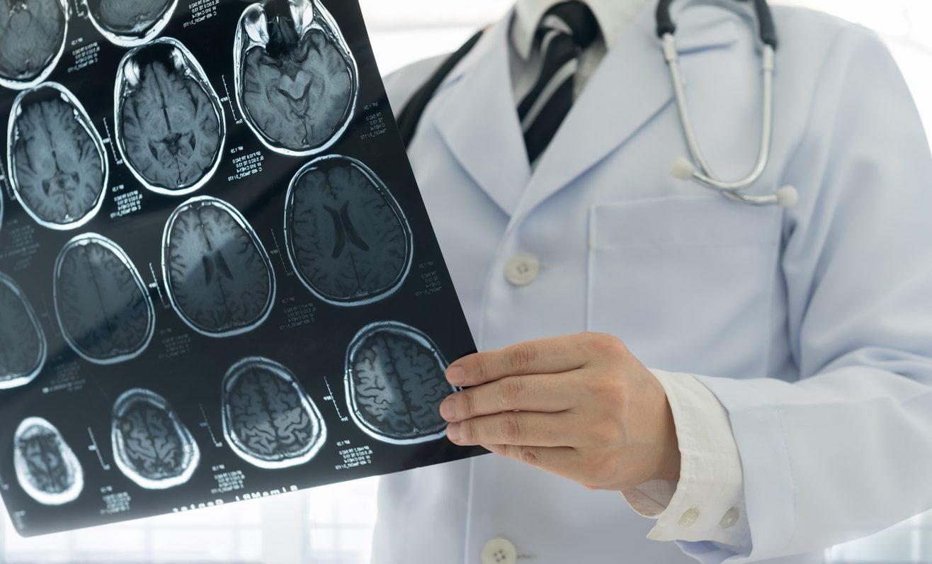 6 ปัจจัยเสี่ยง โรคหลอดเลือดสมอง ที่คุณอาจไม่เคยรู้ตัว!!!!