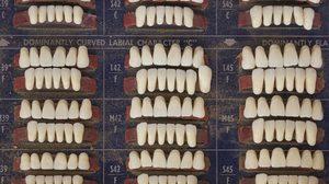 พบฟันมนุษย์นับพันซี่ในกำแพงตึก สืบรู้เคยมีหมอฟันเช่าห้องอยู่