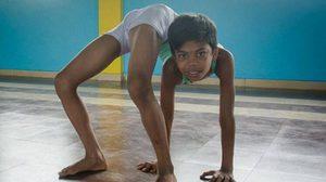 เปิดภาพ เด็กอินเดียวัย 13 ปี ตัวอ่อนจนได้รับฉายา 'มนุษย์งู' (ชมภาพชุด)