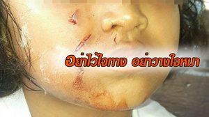 สยอง! ภาพเด็กหญิงถูกหมากัดหน้าเหวอะ ตาหวิดบอด เหตุไปนั่งลูบหัวเล่นลำพัง