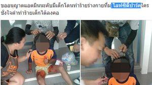 สยอง! ภาพเด็กเป็นแผลพุพอง หลังถูกแม่เลี้ยงโหดราดน้ำร้อนใส่ทำโทษ