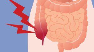 7 อาการปวดท้อง ที่บ่งบอกว่าคุณอาจเป็น ไส้ติ่งอักเสบ!!
