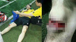 อุบัติเหตุขอบสนาม! หนุ่มเตะบอลหญ้าเทียมเข่าแผลเปิดถึงกระดูกสุดหวาดเสียว
