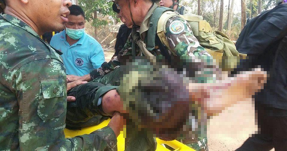 ชุดลาดตระเวนเหยียบกับระเบิด! ในพื้นที่เขตรักษาพันธุ์สัตว์ป่ายอดโดม