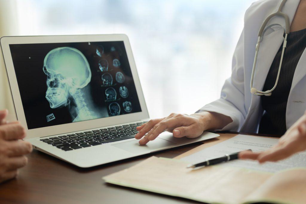 การป้องกันโรคหลอดเลือดสมอง