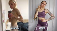 สวยกว่าเห็นๆ สาวคลั่งผอม ฮึดสู้ความตาย ฟิตร่างกายจนได้เป็นเทรนเนอร์ฟิตเนส