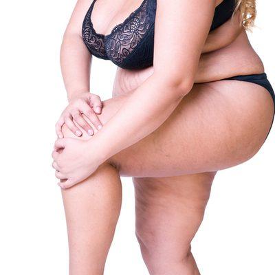 รู้ยัง? แค่ อ้วน ก็มีโอกาสเสี่ยงเป็น โรคเข่าเสื่อม ได้