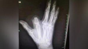 ชายชาวจีนตัดนิ้วทิ้งหลังงูกัด ด้านแพทย์แนะไม่จำเป็น แค่รู้จักวิธีปฐมพยาบาลก็พอ