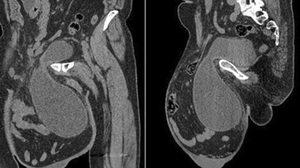 แพทย์ทึ่ง เนื้องอกในอัณฑะนาน 12 ปี จนใหญ่เท่าลูกฟุตบอล