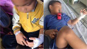 อุทาหรณ์! เด็กชายวัย 4 ขวบ ถูกเห็บเข้าไปวางไข่ในหู
