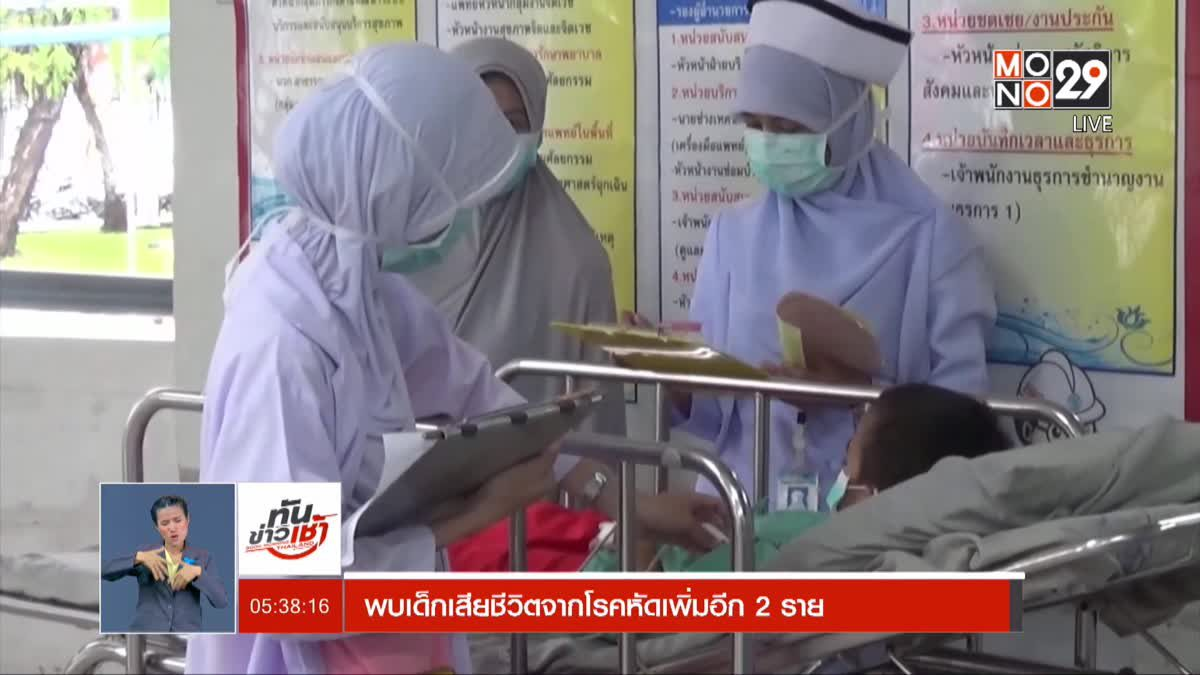 พบเด็กเสียชีวิตจากโรคหัดเพิ่มอีก 2 ราย