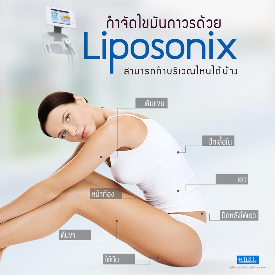 กำจัดไขมันถาวรด้วย Liposonix สามารถทำบริเวณไหนได้บ้าง