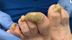 อวสานข้าวทุกมื้อ!! สาวรัฐฟลอริดาไม่ได้ตัดเล็บเท้าที่ติดเชื้อมาหนึ่งปี