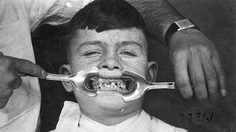 ขนลุก! 10 ภาพเครื่องทำฟันในอดีต