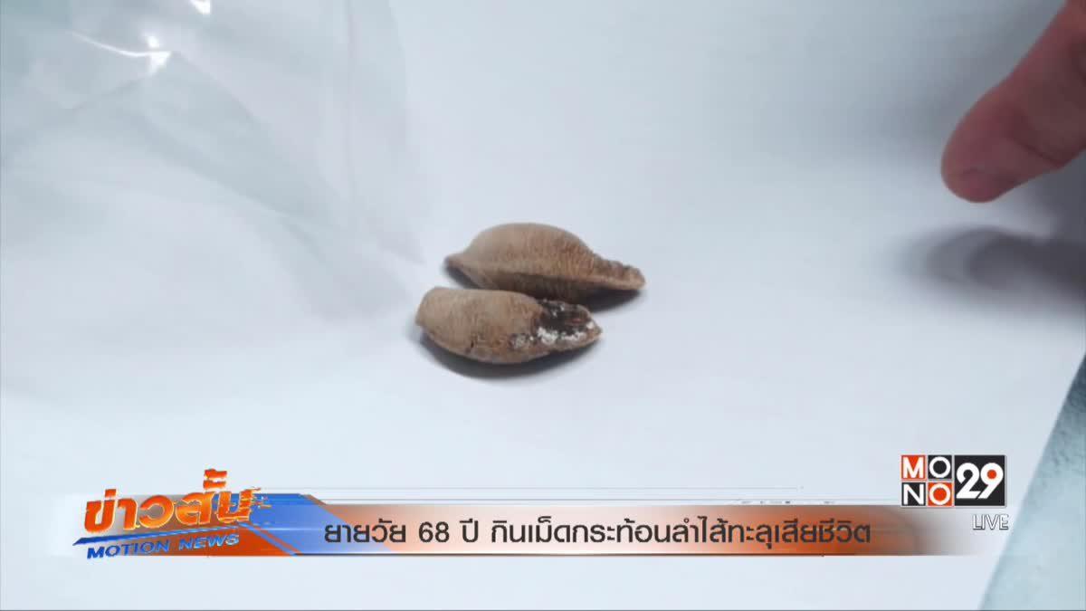 ยายวัย 68 ปีกินเม็ดกระท้อนลำไส้ทะลุเสียชีวิต
