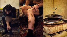 อันตราย!! ยาเสพติด ตัวใหม่ในรัสเซีย มีฤทธิ์ร้ายแรงถึงขั้นเนื้อพัง