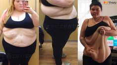 สาวอ้วน โพสต์ขอรับบริจาค เพื่อผ่าตัดกระชับหน้าท้อง หลังลดน้ำหนักไป 80 กิโล