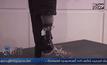 ออสเตรียสร้างขาเทียมที่รับรู้ความรู้สึกได้