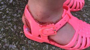 คุณแม่โวย หนูน้อยวัย 2 ขวบ เป็นแผลเหวอะ เลือดท่วม หลังถูก รองเท้ายาง บาด