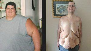 ของแบบนี้มันอยู่ที่แรงใจ หนุ่มอ้วนลดน้ำหนัก 312 เหลือ 141 กิโลกรัม ใน 2 ปี