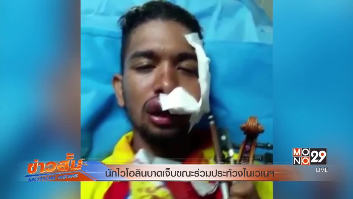 นักไวโอลินบาดเจ็บขณะร่วมประท้วงในเวเนฯ