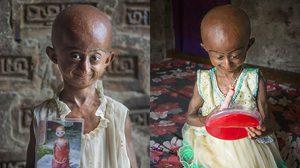 เด็กหญิง 10 ขวบ คิดบวก แม้ป่วยเป็นโรคชรา และมีชีวิตอยู่ได้อีกแค่ 3 ปี