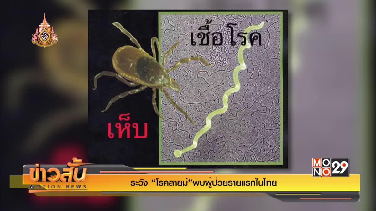 """ระวัง """"โรคลายม์""""พบผู้ป่วยรายแรกในไทย"""