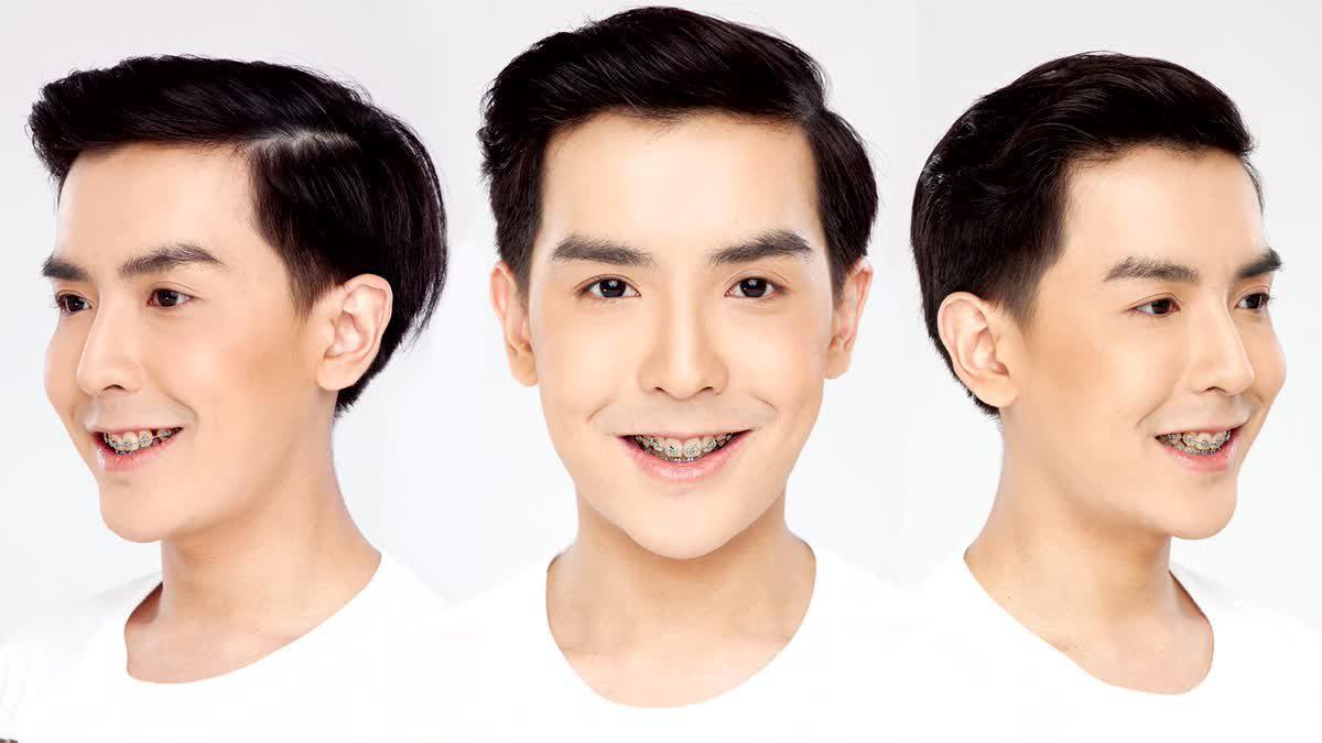 เทคนิคขั้นสูง วิเคราะห์ใบหน้า บอล พชร Let Me in Thailand Season 3 ก่อนศัลยกรรม