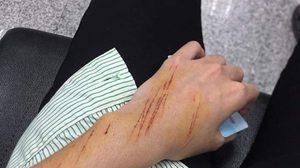 สาวโพสต์ถูกคนร้ายใช้คัตเตอร์กรีดมือ หวังรีดไถ่เงิน บริเวณหลังห้างดังย่านนนทบุรี