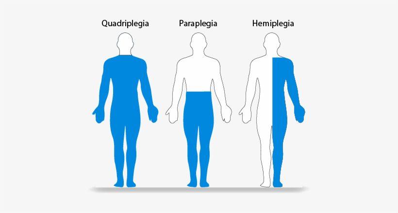 การรักษาโรคอัมพาตขา